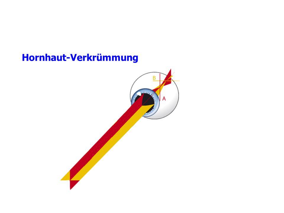 Hornhaut-Verkrümmung