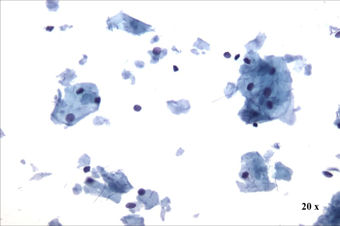 20 x Morphology I Präparatehintergrund Zytolyse