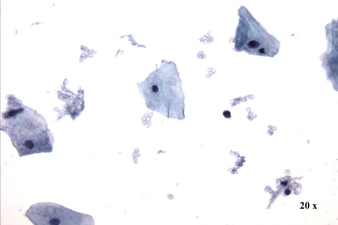20 x Morphology I Präparatehintergrund Blut