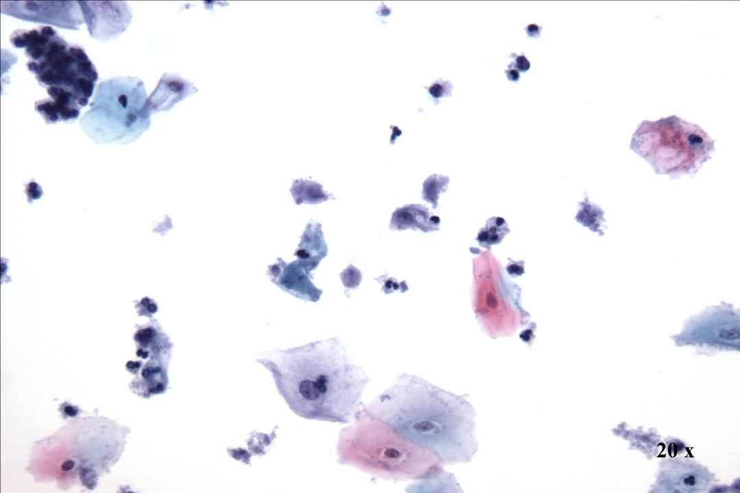 20 x 20 x Morphology I Präparatehintergrund Trichomonas vaginalis