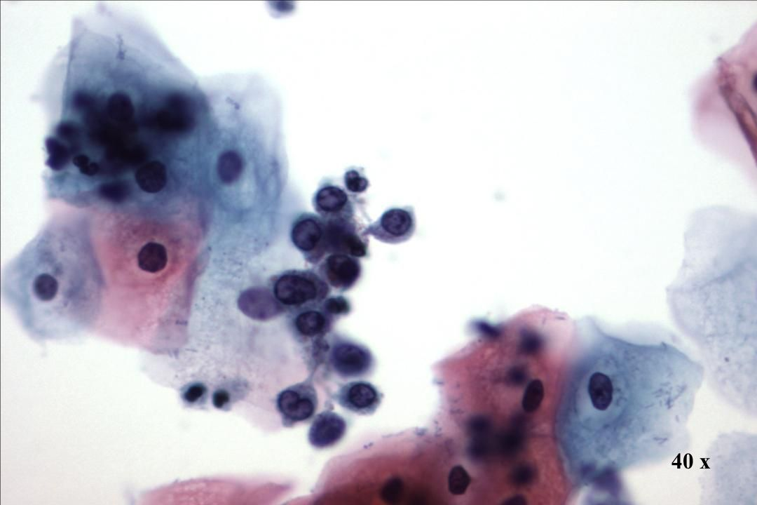 40 x Morphology I TP - Charakteristika Endometriale Stromazellen