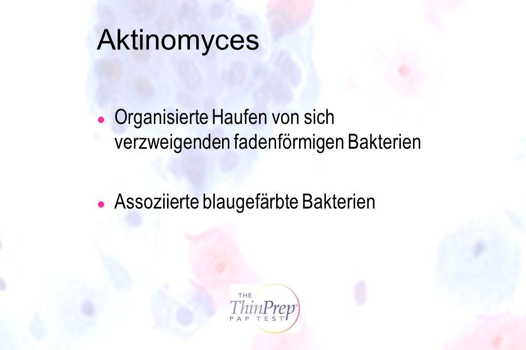 Morphology I Aktinomyces. Organisierte Haufen von sich verzweigenden fadenförmigen Bakterien. Assoziierte blaugefärbte Bakterien.