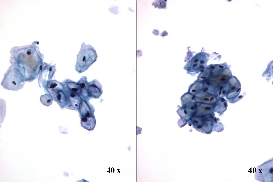 Morphology II Look-Alike: HPV-bedingte Vakuolisierung vs. Vakuolen.