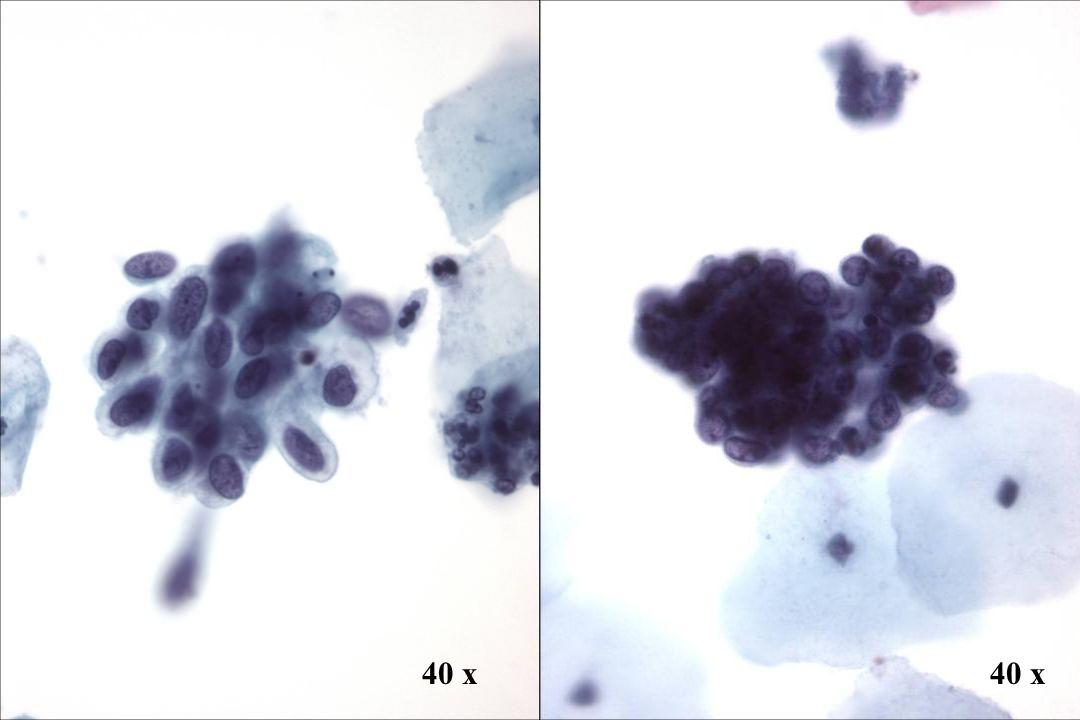 40 x 40 x Morphology II Look-Alike: HSIL vs. Endometriumzellen