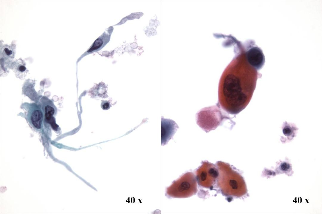 40 x 40 x Morphology II Plattenepithelkarzinom