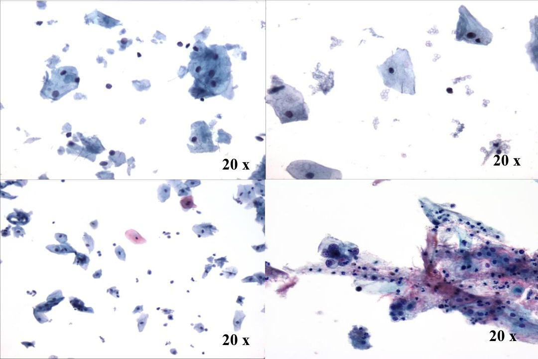 Morphology II 20 x. 20 x. Tumordiathese — Look-Alikes. • Zytolyse — Nacktkerne und zytoplasmatischer Debris sind vorhanden.
