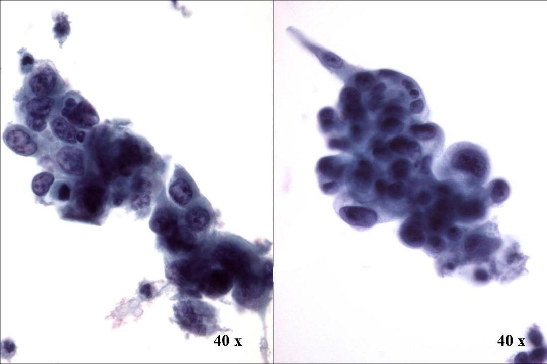 Morphology II Look-Alike: Nichtverhornendes Plattenepithelkarzinom. vs. Adenokarzinom.