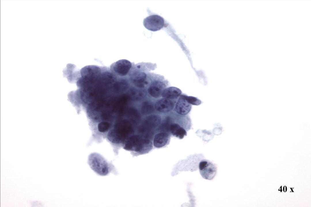 Morphology II AIS. Dieser kleine Zellverband zeigt eine Pseudostratifizierung mit dichtgepackten, hyperchromatischen Kernen.