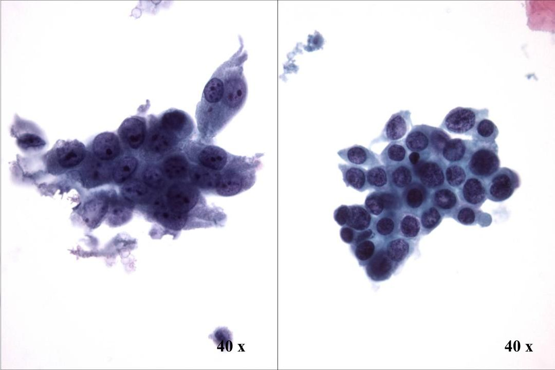 40 x 40 x Morphology II Look-Alike: AIS vs. SIL(Pap IVa) in Drüsen