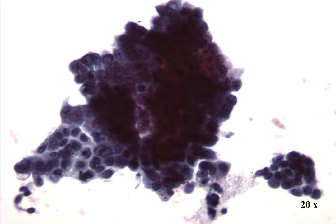 20 x 20 x Morphology II Endozervikales Adenokarzinom