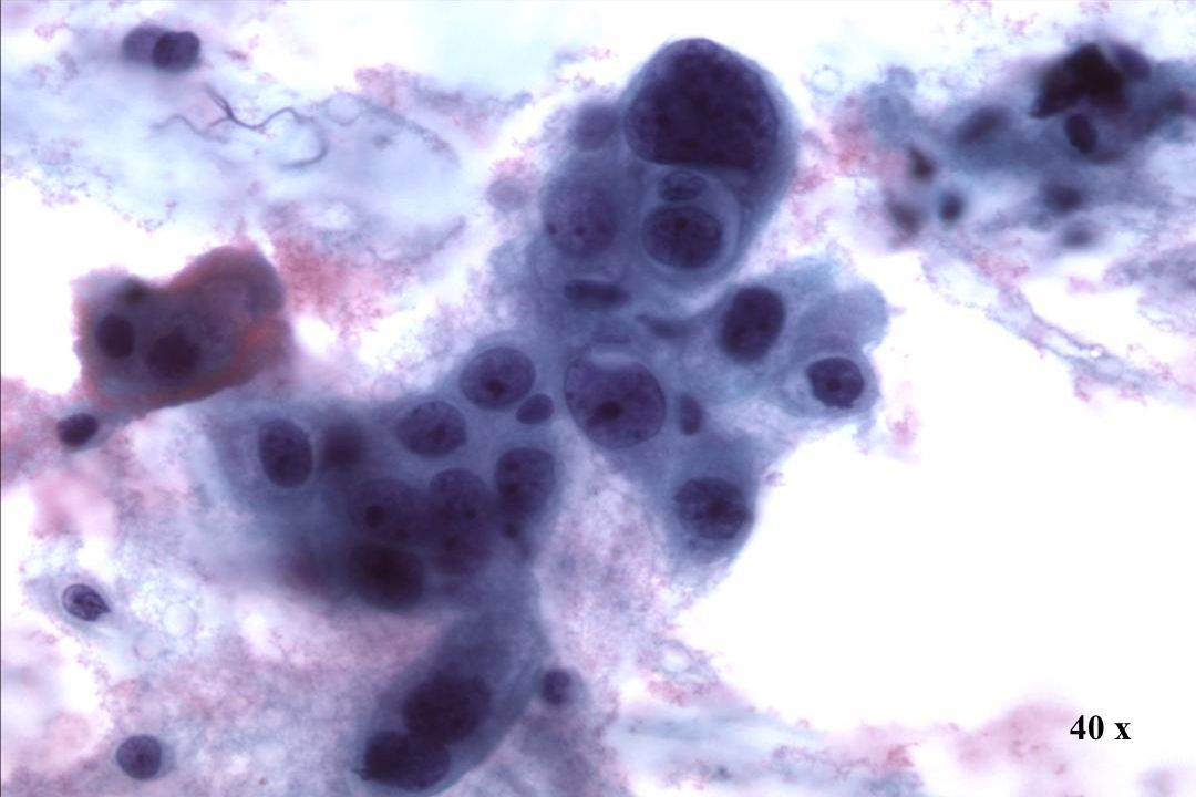 40 x Morphology II Endozervikales Adenokarzinom