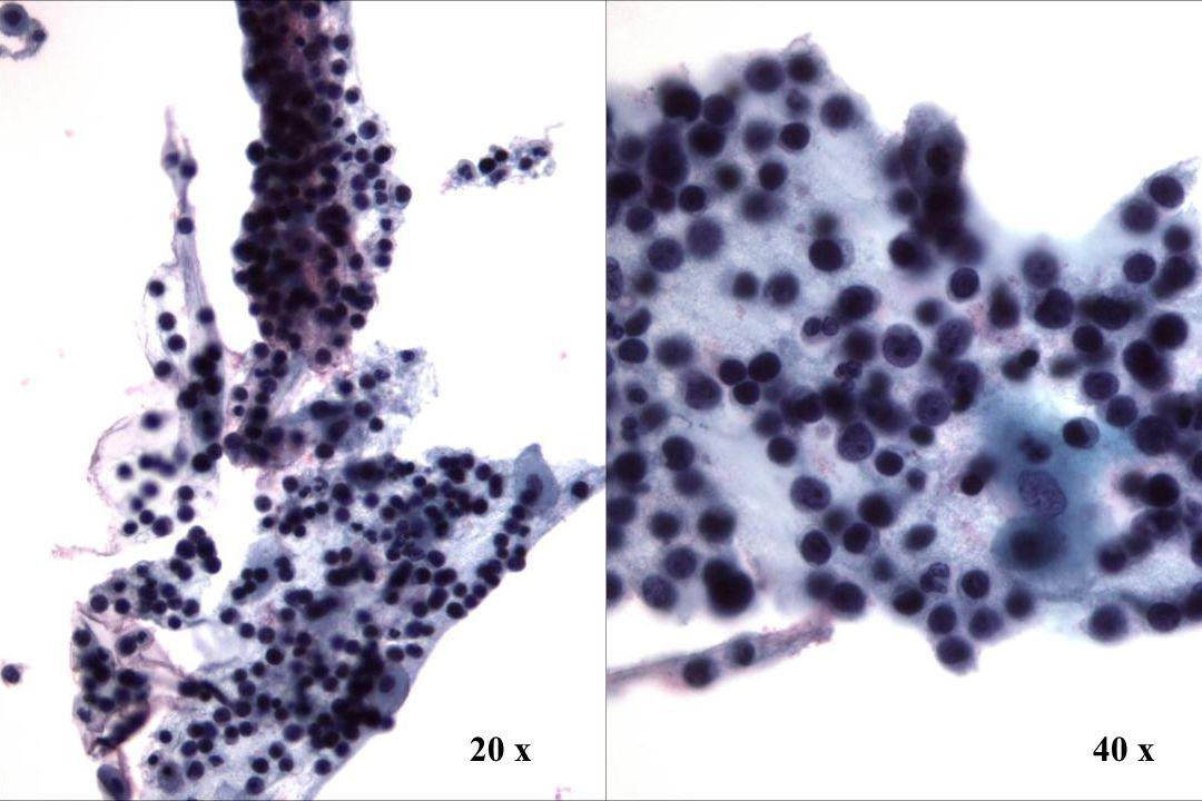 20 x 40 x 20 x Morphology II Zervixmetastase eines Malignen Lymphoms