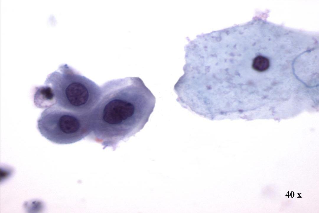 40 x Morphology II ASC-H (entspricht Pap III)