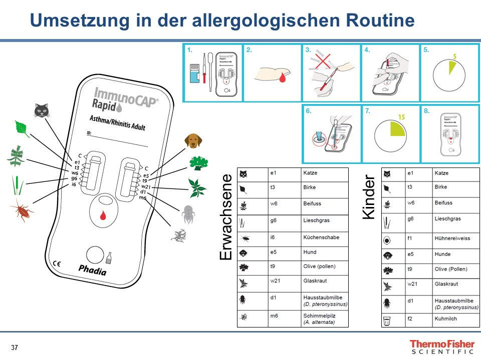 Umsetzung in der allergologischen Routine