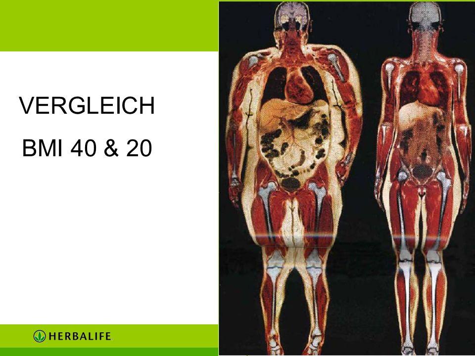 VERGLEICH BMI 40 & 20