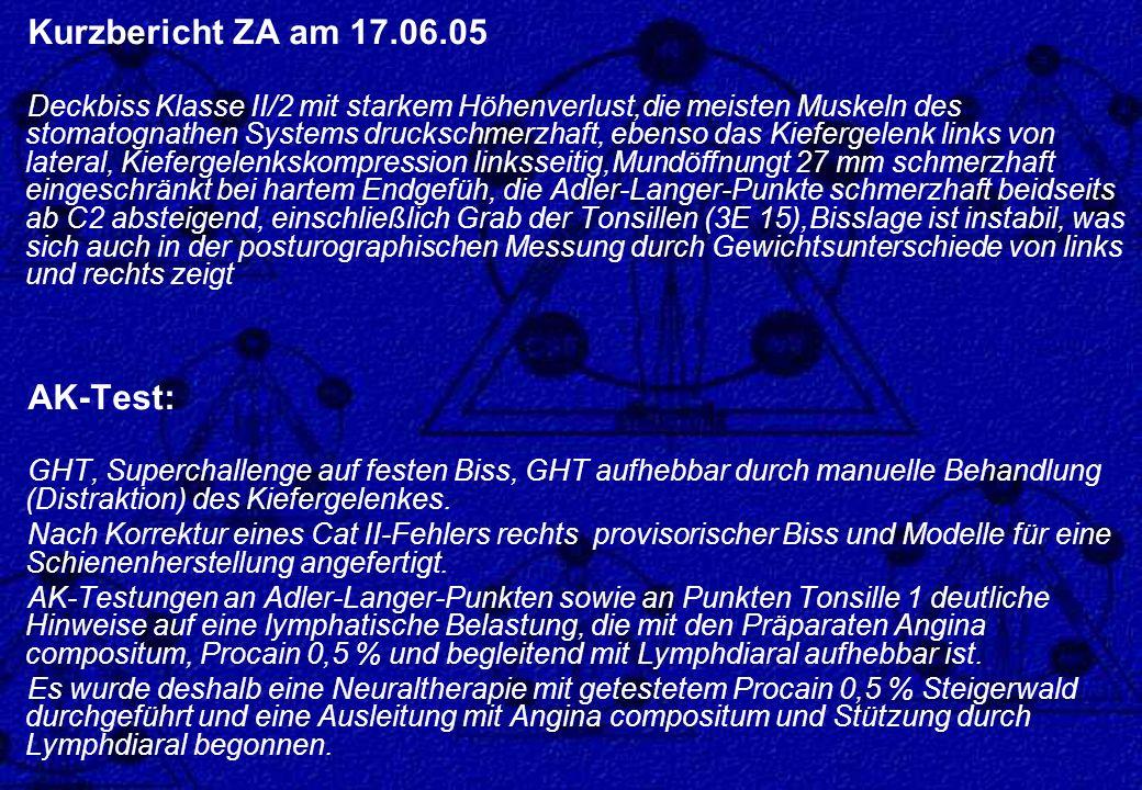 Kurzbericht ZA am 17.06.05 AK-Test: