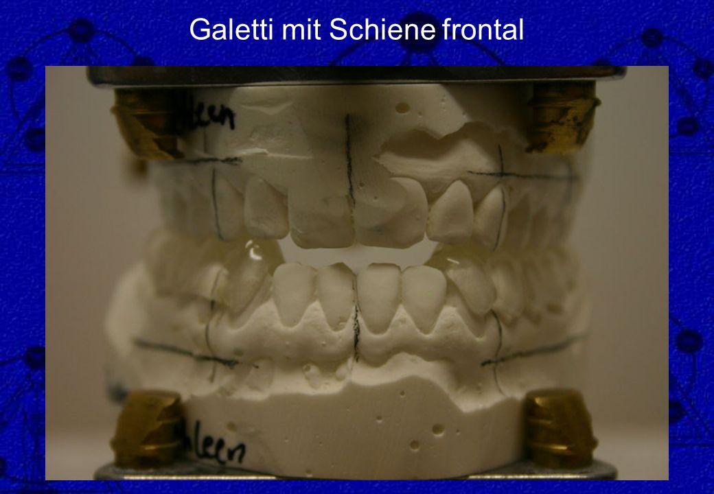Galetti mit Schiene frontal