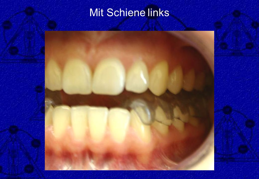 Mit Schiene links