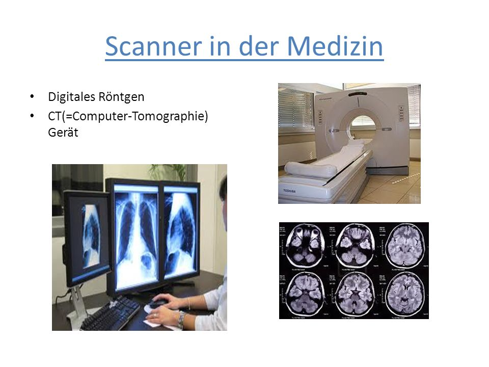Scanner in der Medizin Digitales Röntgen