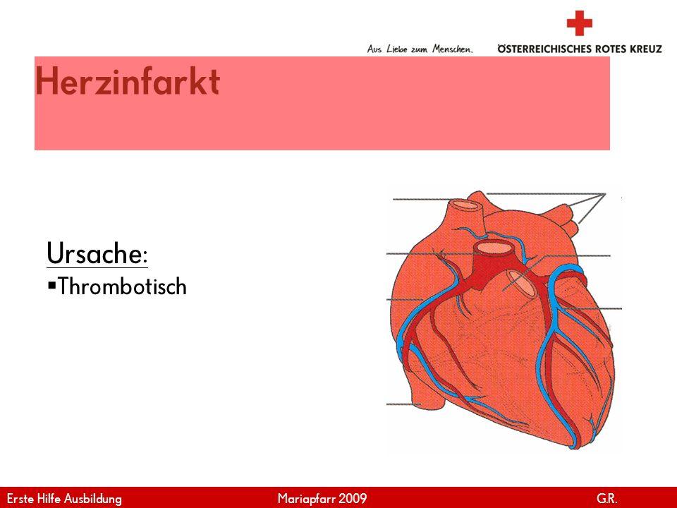 Herzinfarkt Ursache: Thrombotisch