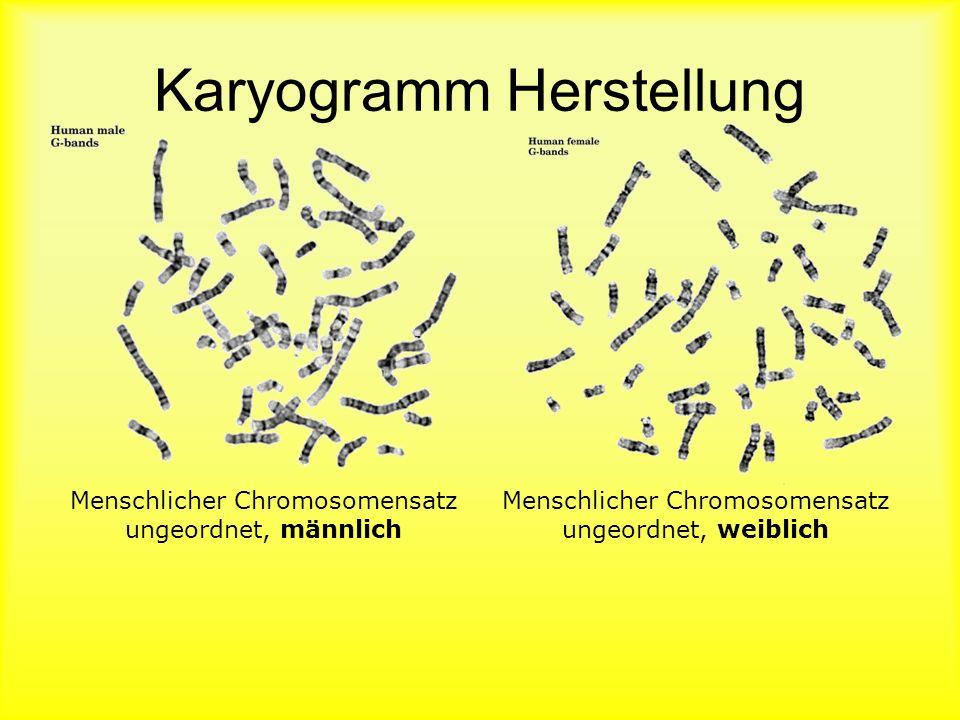 Karyogramm Herstellung