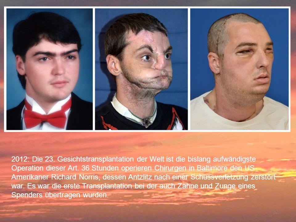 2012: Die 23. Gesichtstransplantation der Welt ist die bislang aufwändigste Operation dieser Art. 36 Stunden operieren Chirurgen in Baltimore den US-Amerikaner Richard Norris, dessen Antzlitz nach einer Schussverletzung zerstört war. Es war die erste Transplantation bei der auch Zähne und Zunge eines Spenders übertragen wurden.