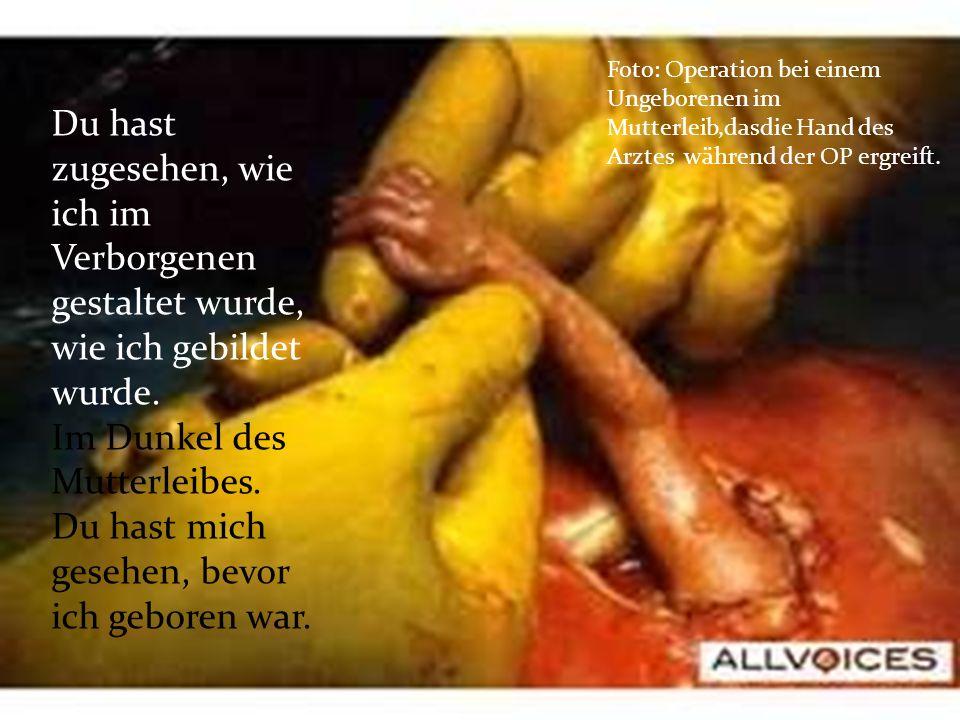 Foto: Operation bei einem Ungeborenen im Mutterleib,dasdie Hand des Arztes während der OP ergreift.