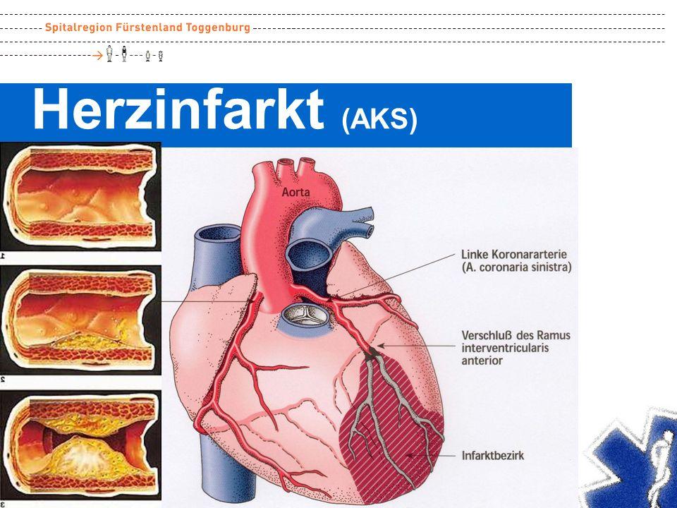 Herzinfarkt (AKS)
