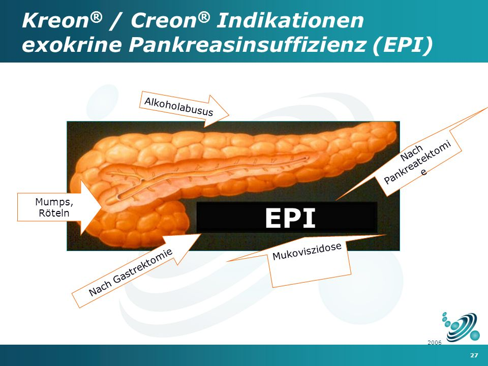 Kreon® / Creon® Indikationen exokrine Pankreasinsuffizienz (EPI)