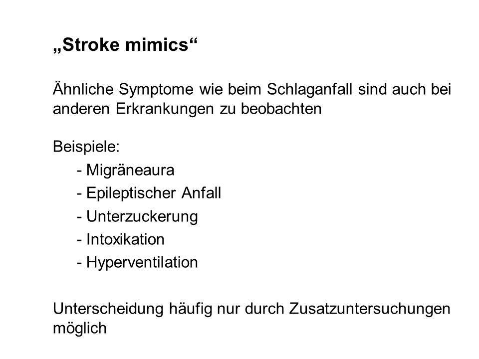 """""""Stroke mimics Ähnliche Symptome wie beim Schlaganfall sind auch bei anderen Erkrankungen zu beobachten."""