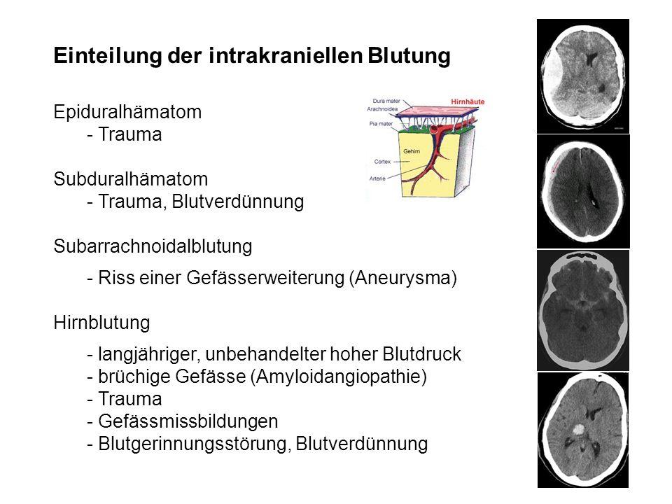 Einteilung der intrakraniellen Blutung