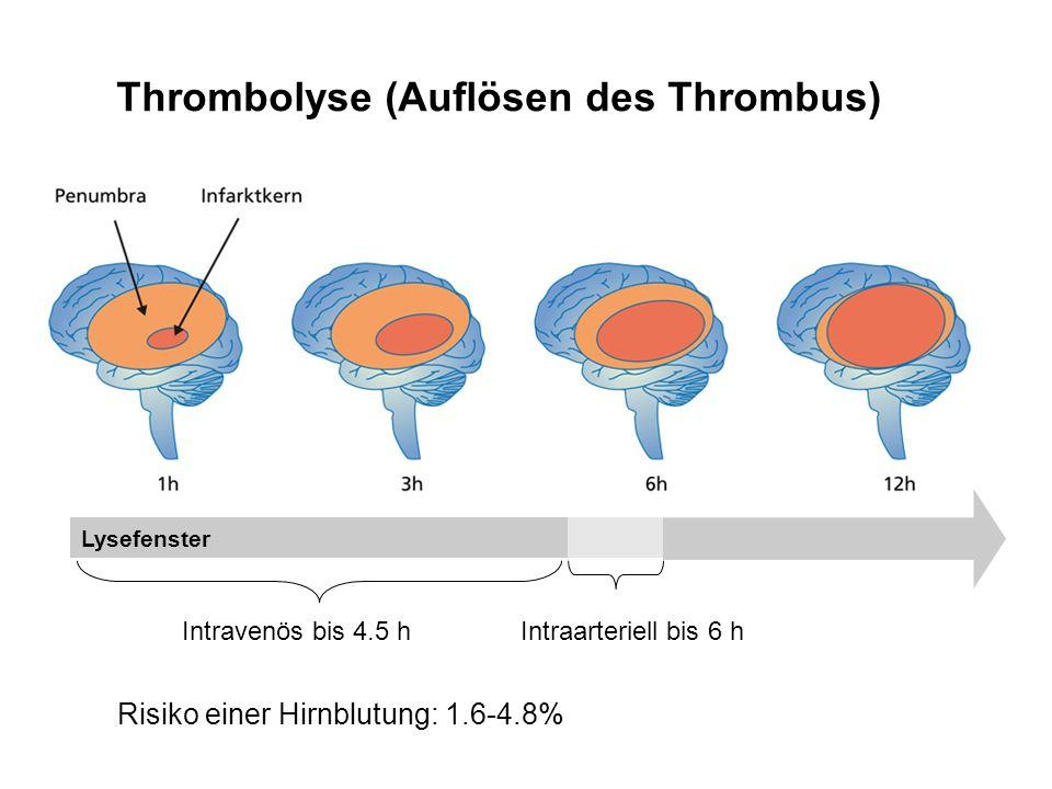 Thrombolyse (Auflösen des Thrombus)
