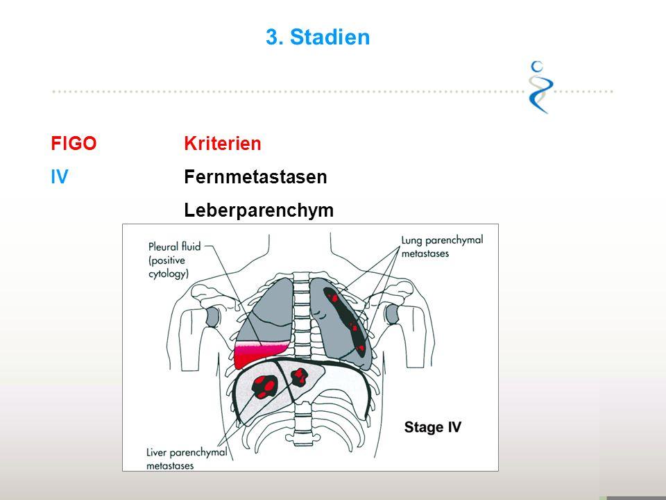 3. Stadien FIGO Kriterien IV Fernmetastasen Leberparenchym 21