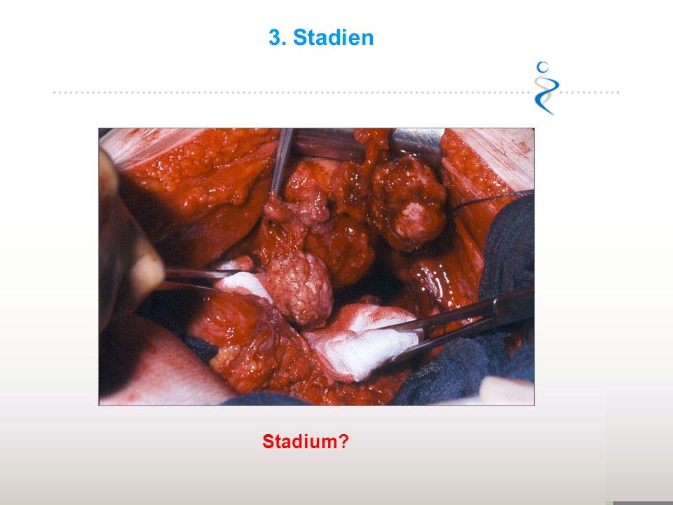 3. Stadien Mind. FIGO IIb Stadium 22