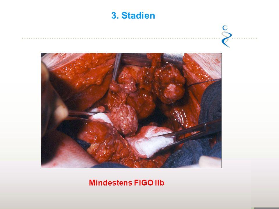 3. Stadien Mind. FIGO IIb Mindestens FIGO IIb 23