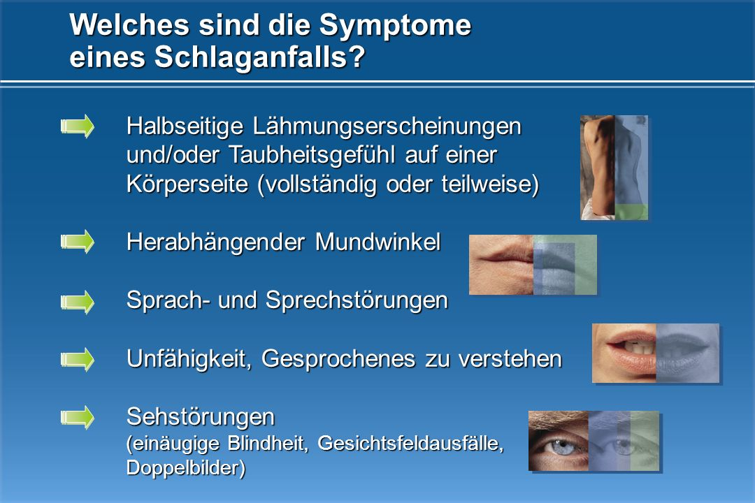 Welches sind die Symptome eines Schlaganfalls