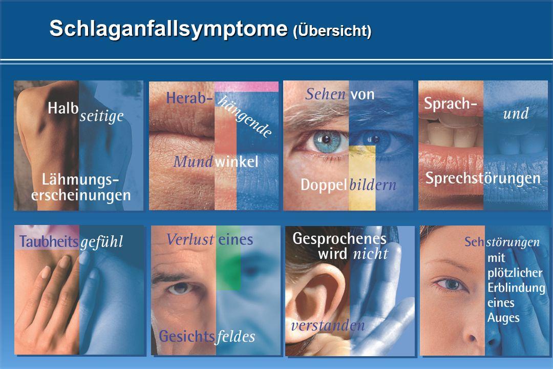 Schlaganfallsymptome (Übersicht)