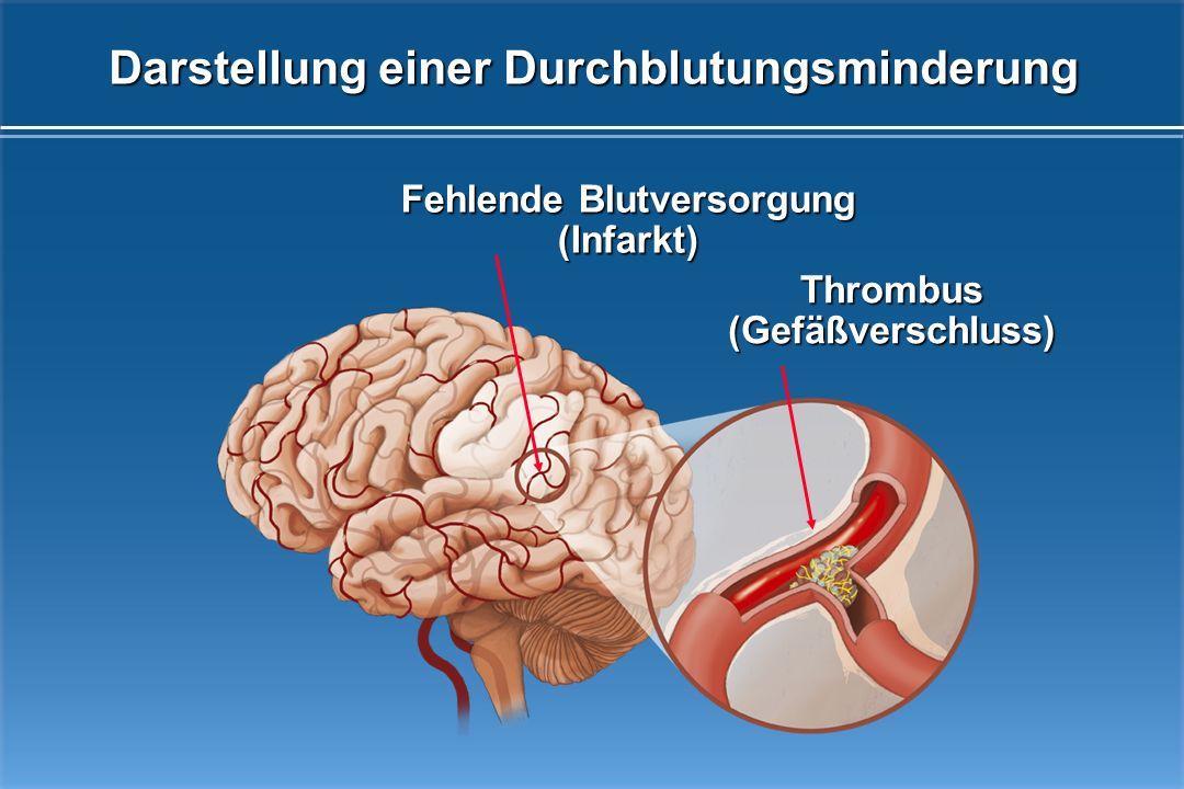 Darstellung einer Durchblutungsminderung