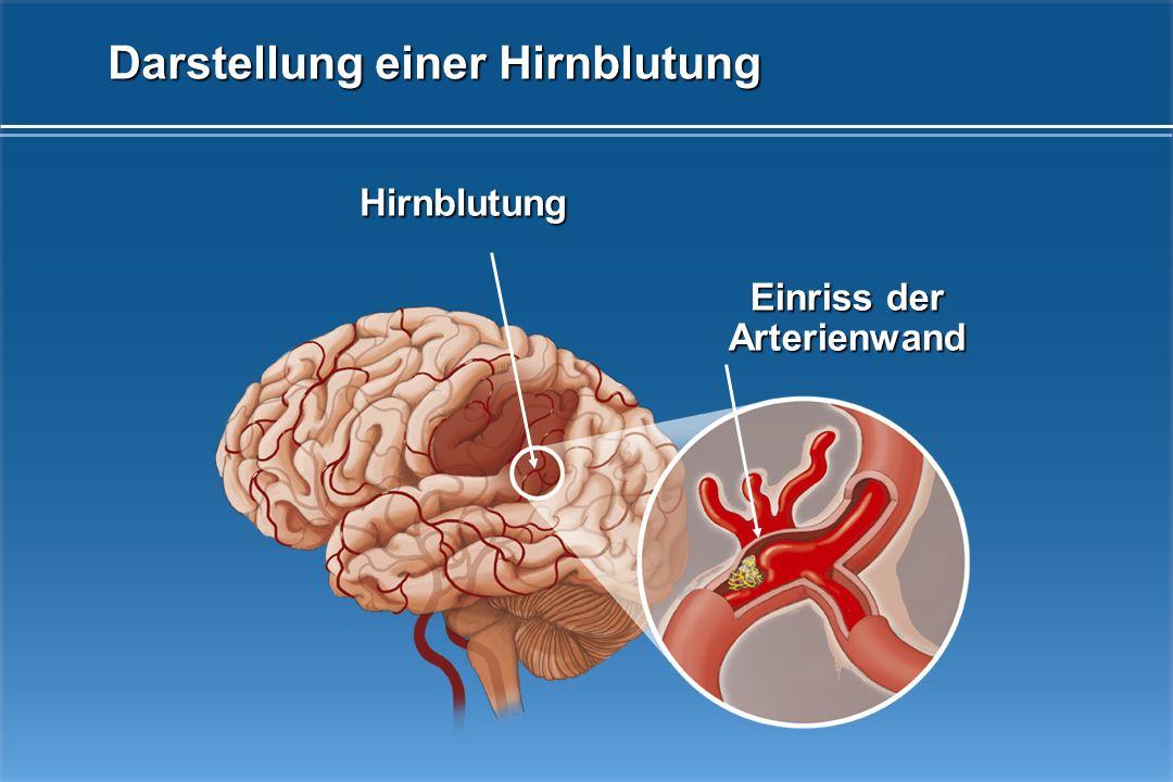 Darstellung einer Hirnblutung