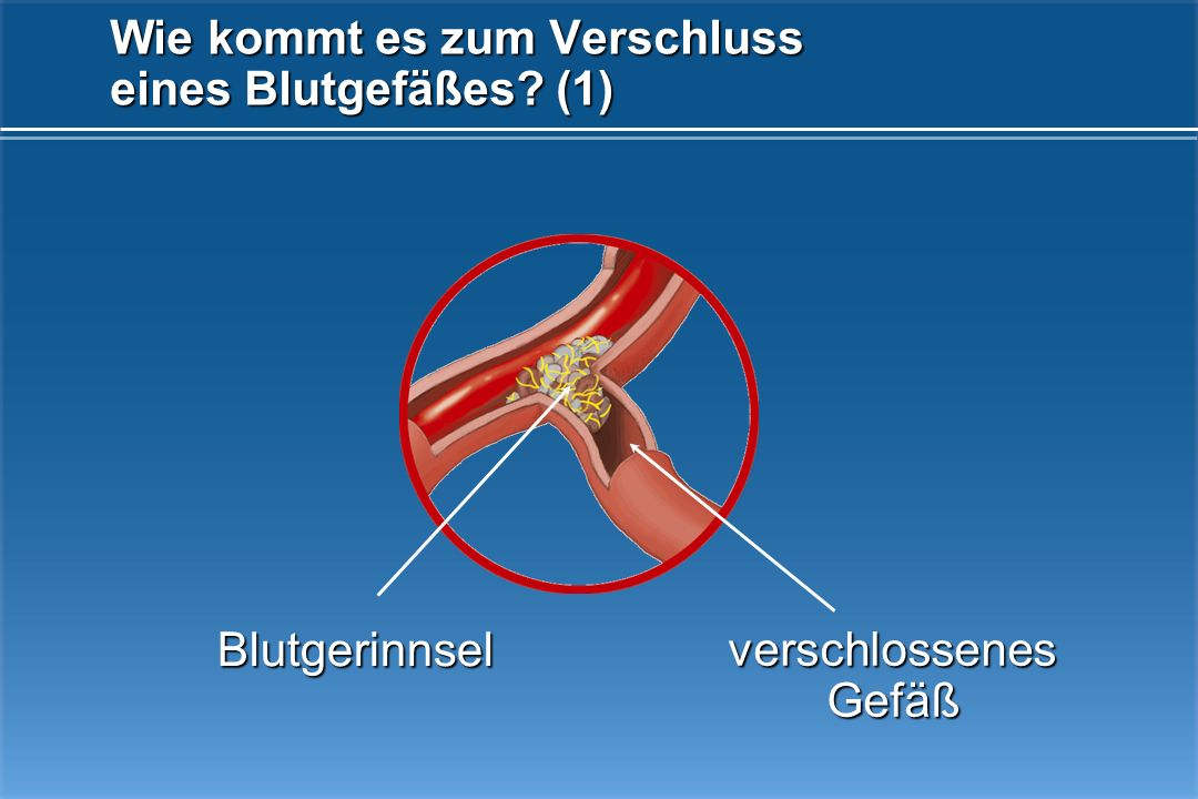 Wie kommt es zum Verschluss eines Blutgefäßes (1)