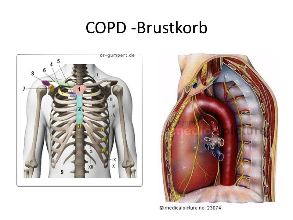 COPD -Brustkorb
