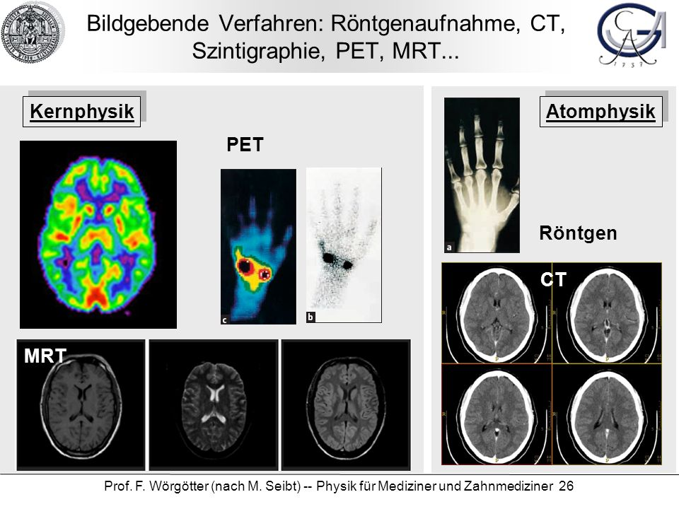 Bildgebende Verfahren: Röntgenaufnahme, CT, Szintigraphie, PET, MRT...