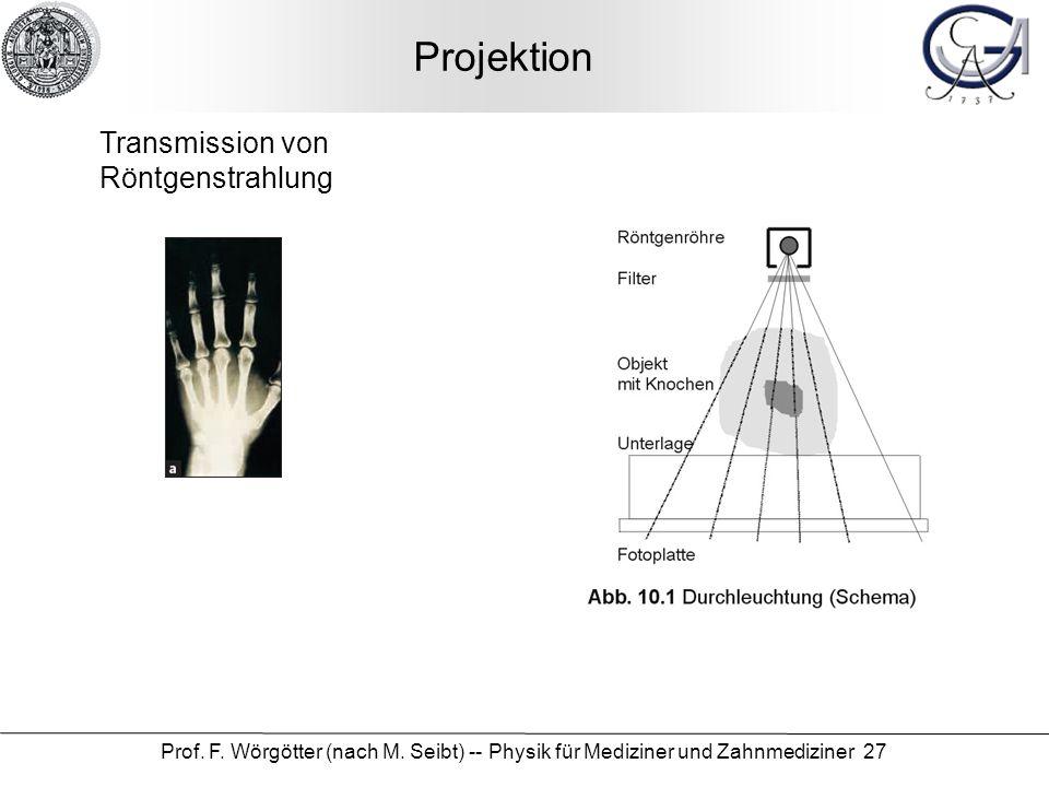 Projektion Transmission von Röntgenstrahlung