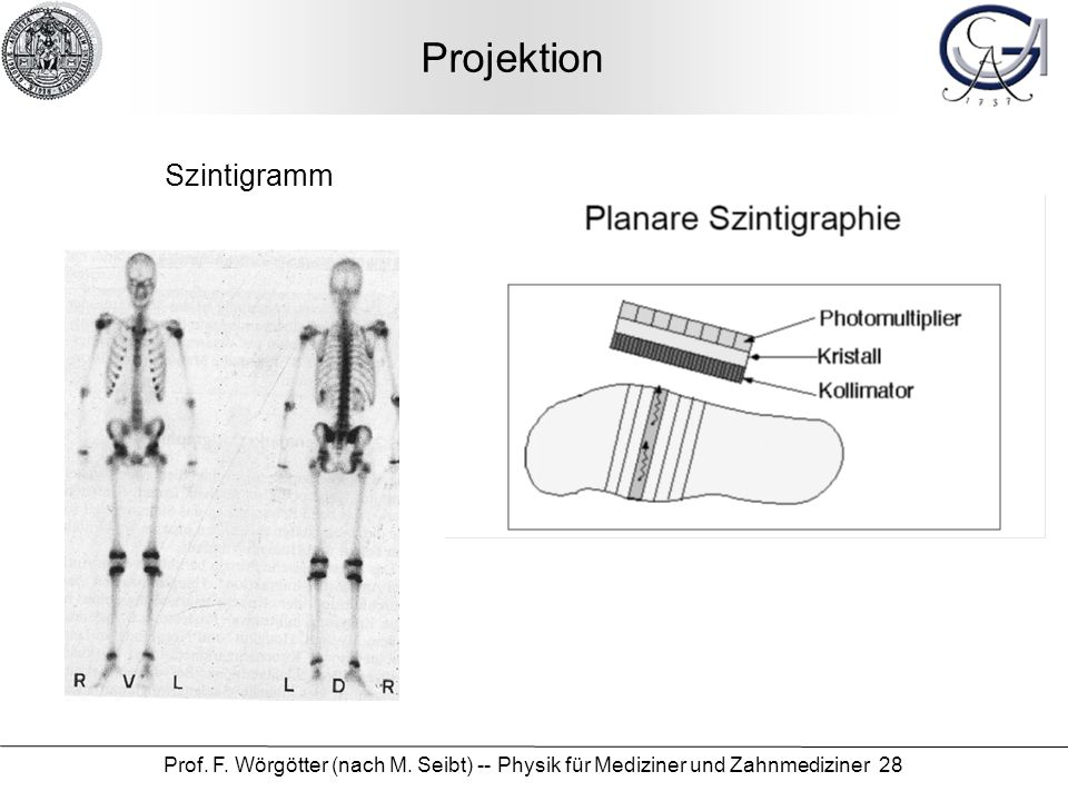 Projektion Szintigramm