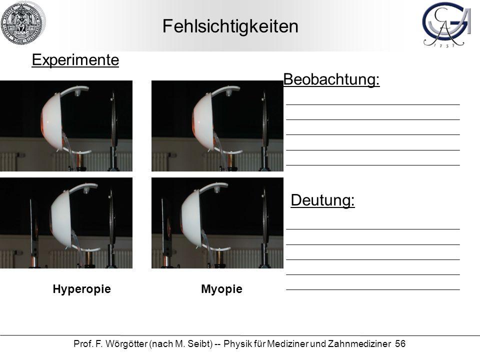 Fehlsichtigkeiten Experimente Beobachtung: Deutung: Hyperopie Myopie