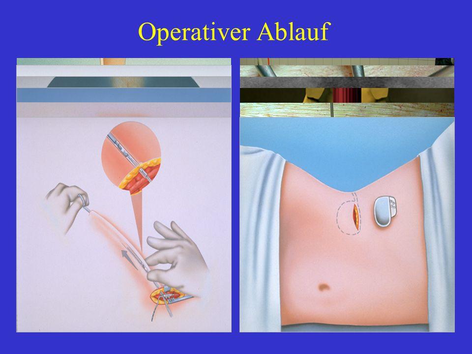 Operativer Ablauf