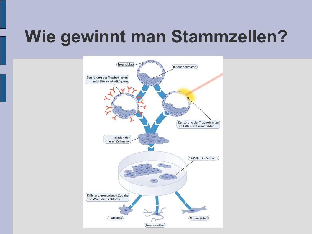 Wie gewinnt man Stammzellen