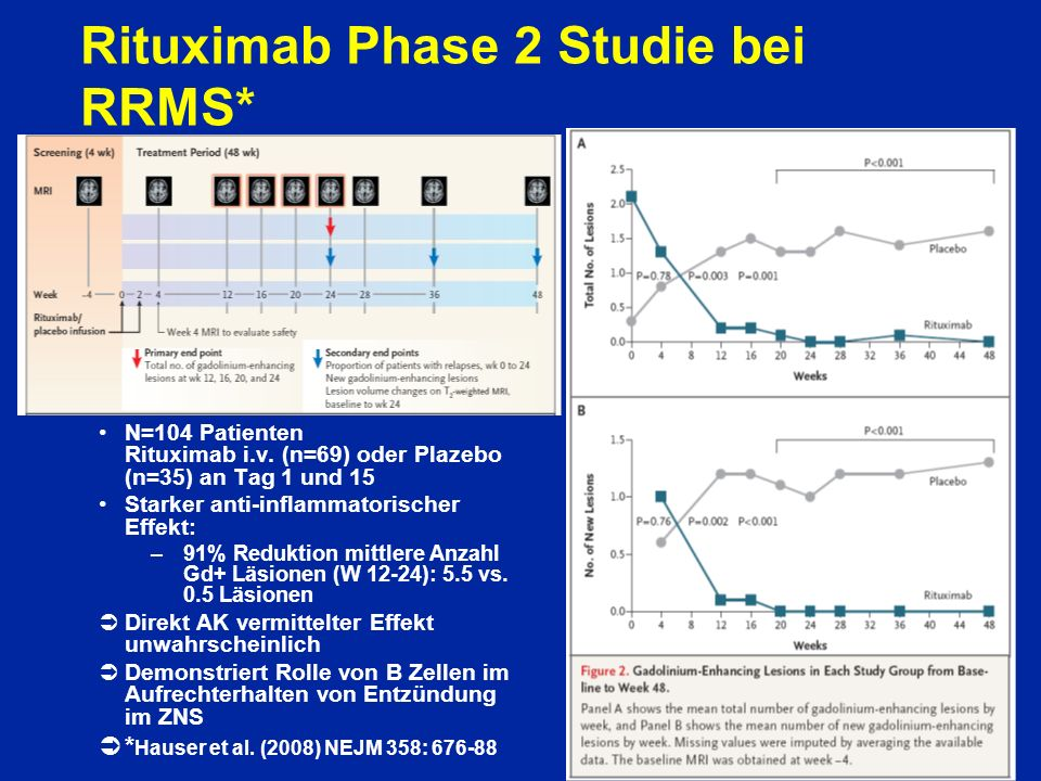 Rituximab Phase 2 Studie bei RRMS*