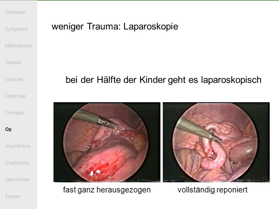 weniger Trauma: Laparoskopie