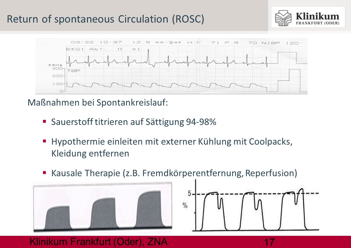 Return of spontaneous Circulation (ROSC)